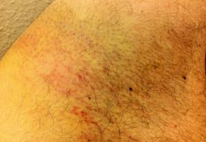 Bruised thigh